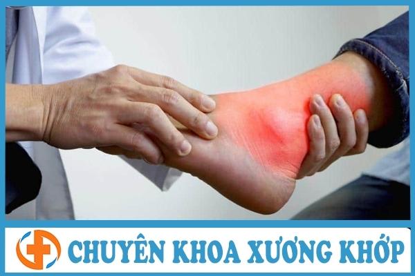phuong phap tro gout bang bai tap tri lieu